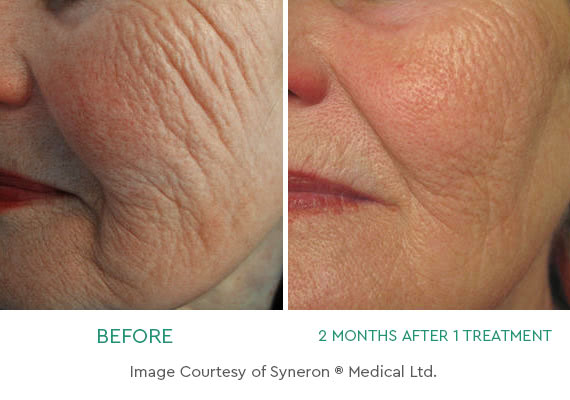 Fight Back Against Aging Skin with Profound® RF Skin Tightening